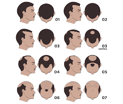 norwood scale male pattern baldness scale