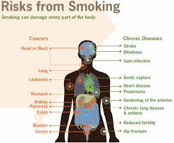 Can Stroke Cause Blindness Smoking U0027s Deadly Risks Summitdaily Com
