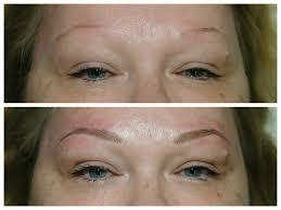 cosmetic tattoo clinic caloundra permanent cosmetics dermaventure