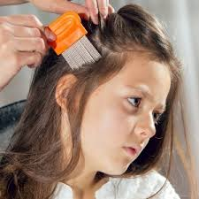 coke rinse hair home remedies for head lice health24