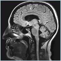 Sagittal Brain Mri Anatomy Highfield Mri 1 5t Open Mri Full Body Scan Neurology