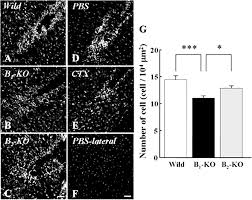 bradykinin induced microglial migration mediated by b1 bradykinin