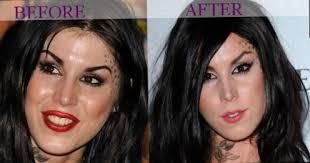 tamar braxton nose job before after celebrity kat von d plastic surgery photos video