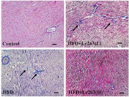 ijms free full text heat killed lactobacillus reuteri gmnl 263