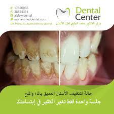 zoom dr mohamed alalawi dental centerdr mohamed alalawi dental