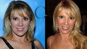 ramona singer earrings ramona singer plastic surgery before and after photos