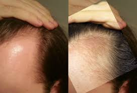 Castor Oil For Hair Loss Swisstemples U0027 Approach To Hair Loss Ray Peat Forum