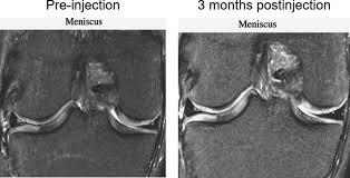 tissue engineering in orthopaedic sports medicine current
