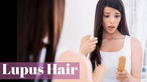 beauty sle programs lupus hair loss and the heartbreaking experience