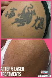 28 austin tattoo removal my friends austinpicosure com a