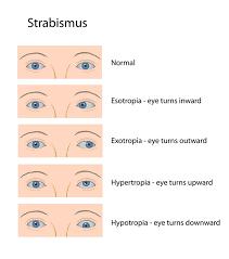 strabismus cross eyed squint lazy eye