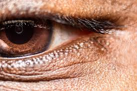 Finding Your Blind Spot In Your Eye Visual Field Test Eye Exam