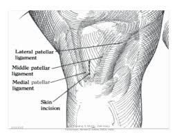 Lateral Patellar Ligament Angels Presenting Chronic Patellar Luxation In Cattle By Pavul