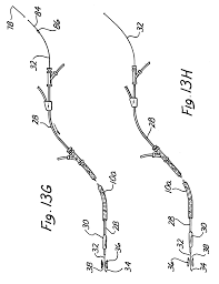 patent ep0574542b1 device for exchanging cardiovascular guide