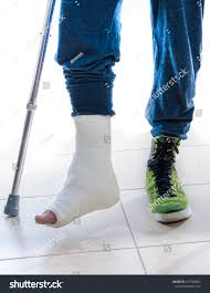 Walking Up Stairs With Crutches by Young Man Broken Ankle White Cast Stock Photo 417958603 Shutterstock