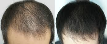 for hair prp hair loss treatment orange county platelet rich plasma