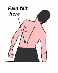 is your lower back caused by side bending to the left or to