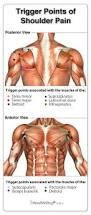 Subscapularis And Supraspinatus Symptoms And Treatment Options For Trigger Points Found In Muscle