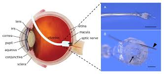 Artificial Eye For Blind Artificial Vision By Direct Optic Nerve Electrode Av Done