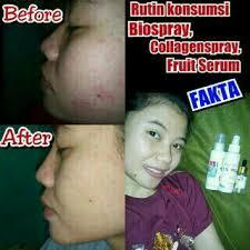 Ecer Collagen Spray Msi 50 testimoni real msi fruit serum serum wajah msi pt mahakarya