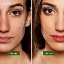 best tea tree acne treatment tea tree oil cream keeva organics
