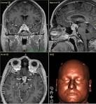 Immagine al Neuronavigatore di