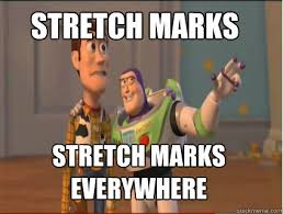 Stretch Marks Meme - stretch marks stretch marks everywhere woody and buzz quickmeme