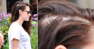 hairstyles for women with alopecia hair loss expert and hair transplant surgeon on kristen stewart