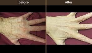age spots nyc york sun damage age spot removal