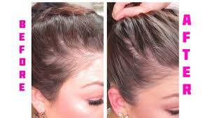 i u0027m going baled cure for women lossing hair hair loss rogaine