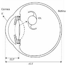 schematic of an eye implanted with an intraocular lens the dashed