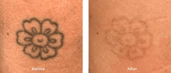 miami center for dermatology u0026 cosmetic dermatology laser tattoo