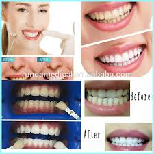 brightwhite smile teeth whitening light blue light teeth whitening machine bright white smile laser teeth