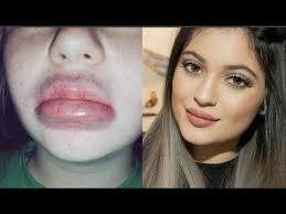 Challenge Wrong Jenner Lip Challenge Wrong Graphic