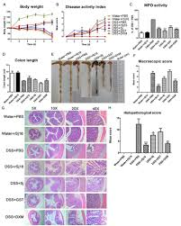 Ct Dss Map Rsj16 Protects Against Dss Induced Colitis By Inhibiting The Ppar