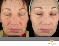 blue light for acne side effects photodynamic therapy levulan chicago il advanced dermatology