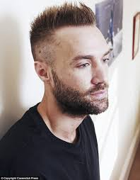 best hairtransplant in the world calum best undergoes a second 6 000 hair transplant in two years