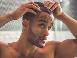 percentae of men with thinning hair at 60 does rogaine work on thin hair beards women or receding hairline