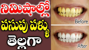 whitening teeth very fast at home u2013 being andhra