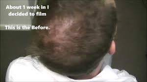 laser hair growth therapy before u0026 after must see results