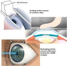Astigmatism Night Blindness Lasik For Astigmatism The Laser Of Hope Or Destruction