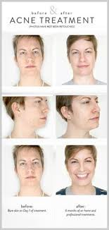 neutrogena light therapy acne mask before and after 19 summer skin care picks from hollywood s top aestheticians other