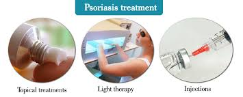 psoriasis treatment psoriasis treatment image today health tips