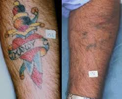 how to remove tattoo what are the side effects of tattoo removal