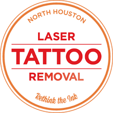 employer tattoo policies remove tattoo north houston http