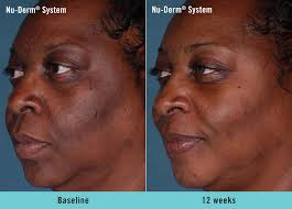 omi young obagi obagi nu derm systems beautifully transform your skin to look