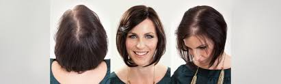 special cuts for women with hairloss hair loss in women transitions hair