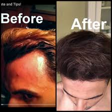 Essential Oils For Hair Loss Grow Hair On Receding Hairline Naturally Dermaroller And