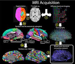 Human Brain Mapping Plos Biology Mapping The Structural Core Of Human Cerebral Cortex