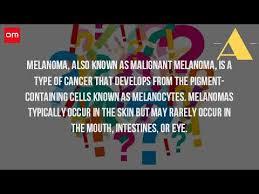 where does malignant melanoma originate
